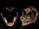 3-3d-implanta-galileos.jpg