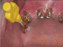 5-implantatreinigung.jpg